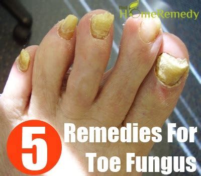 Simple Home Remedies For Toe Fungus - Natural Treatments