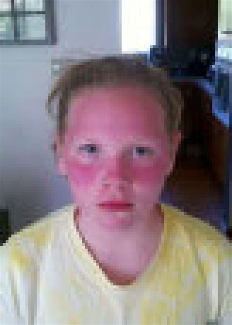 Students suffer severe sunburn after teachers refuse to