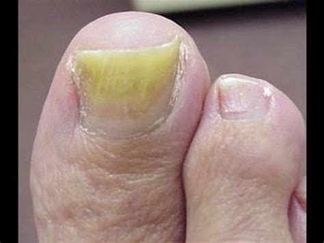 The Best Treatment For Toenail Fungus - Get Rid Of Nail