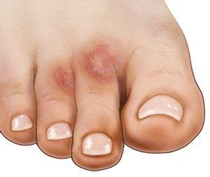Itchy Toes - How to Diagnose and How to Treat